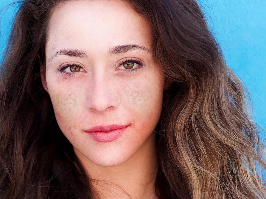 Methode gegen Sommersprossen, Verfärbungen, Falten und fettige Haut – Cosmelan-Behandlung