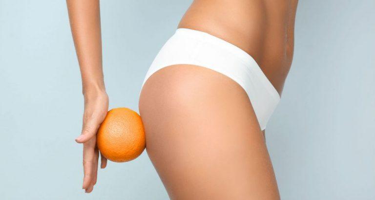 Kampf gegen Cellulite ist zu gewinnen! Testen Sie die beste Anti-Cellulite-Kosmetik